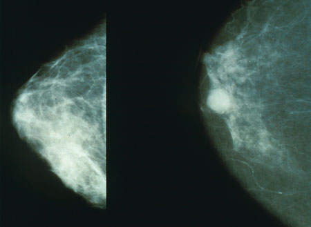 Mammograms showing healthy (left) and (right) cancerous breast. Courtesy of the National Cancer Institute.