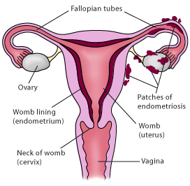Drawing of uterine cross-section indicating endometriosis.