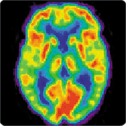 Positron emission tomography image of a human brain