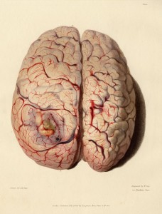Medical-Anatomical-Superior-half-of-diseased-brain